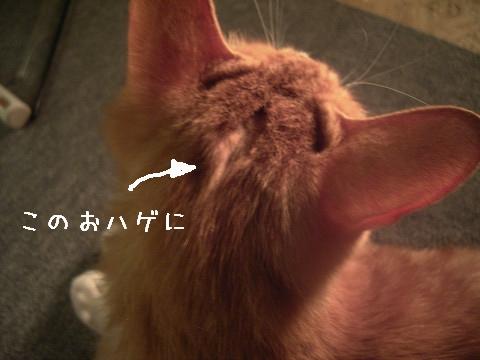 鼻カテーテル設置のためのハゲ
